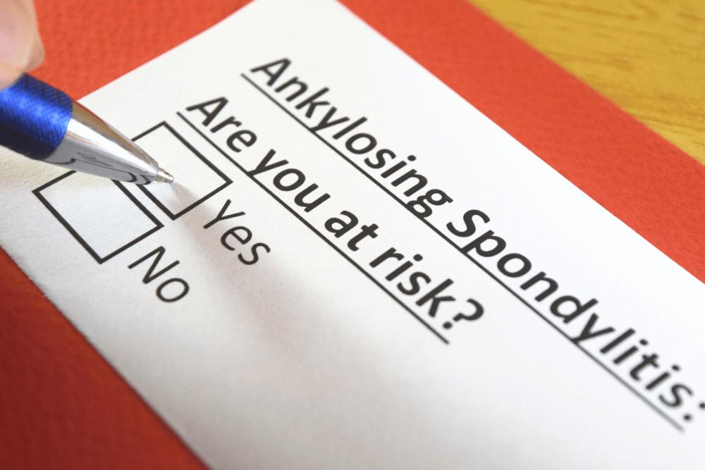 Ankylosing spondylitis: Are you at risk?
