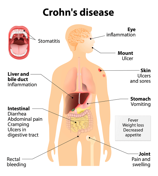 Crohn's syndrome