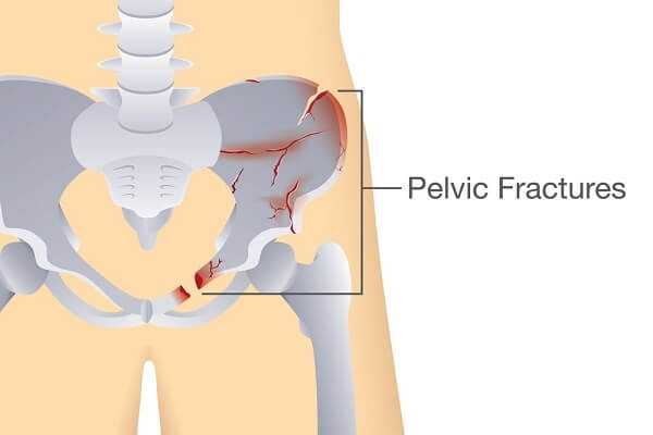 Fractures of the pelvic