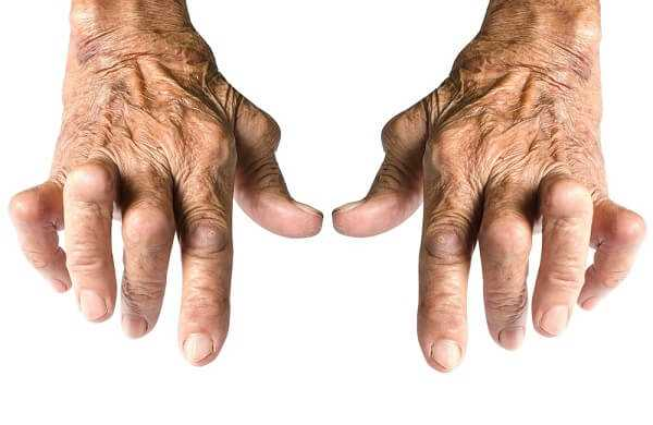 Old Woman's Hands Deformed From Rheumatoid Arthritis Isolated