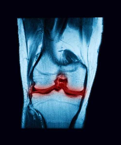 Magnetic resonance imaging rheumatoid arthritis