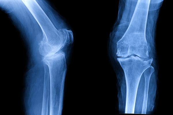 Osteoarthritis OA knee