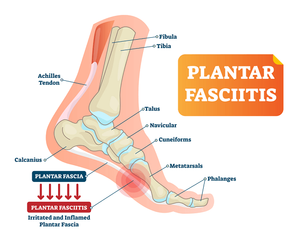 Painful plantar fascia inflammation and irritation infographic