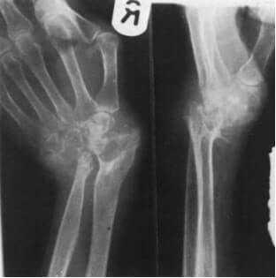 Rheumatoid arthritis affecting the wrist joint