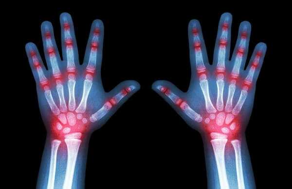 X-ray both child hands and multiple joint arthritis
