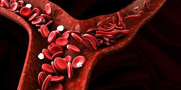 Photo of What is Sickle Cell Disease