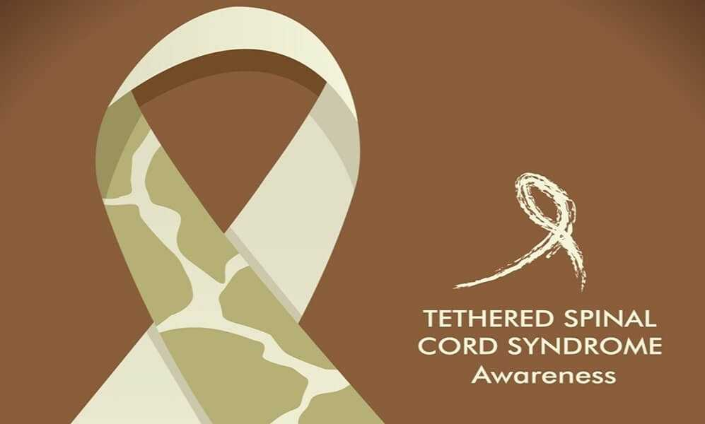 what causes Tethered Spinal Cord Syndrome
