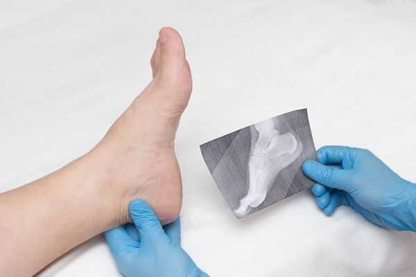 Plantar Fasciitis and Bone Spurs