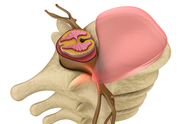 herniated disc closeup
