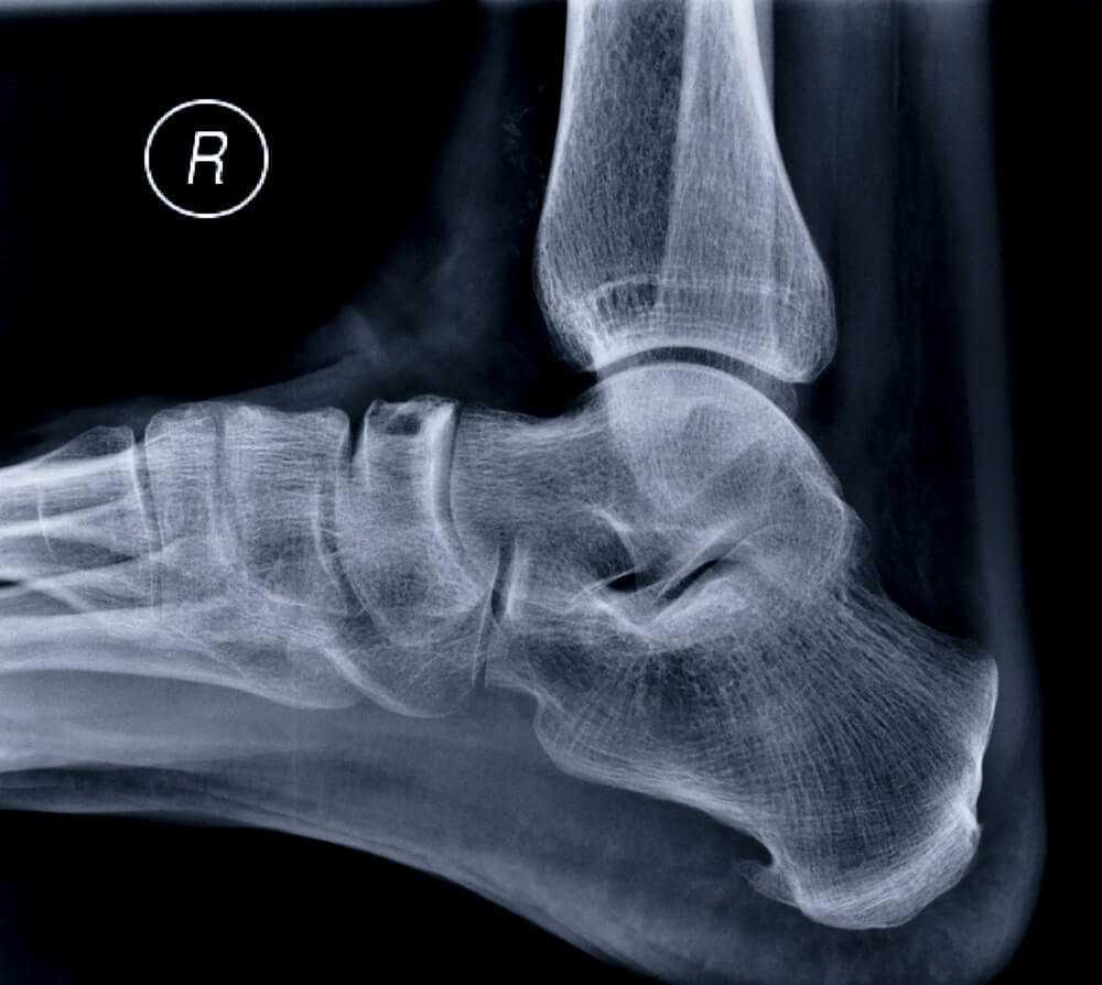 X ray of the heel spur