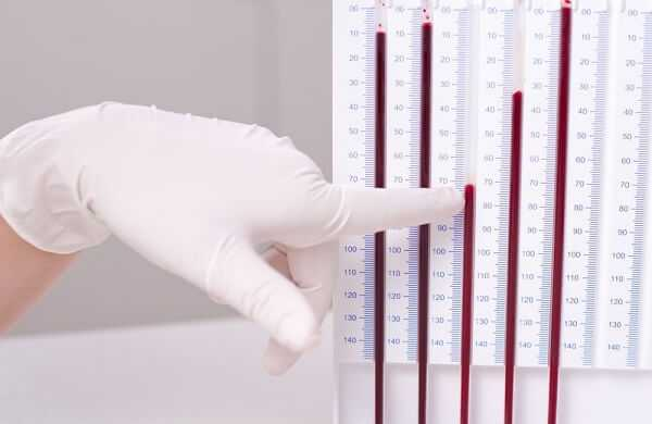erythrocyte sedimentation rate test in laboratory