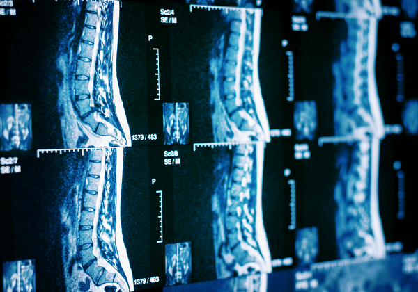 diagnosis by ct scan