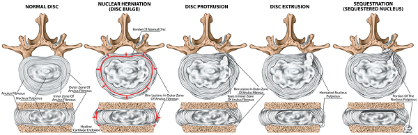 Types and stages of lumbar disc herniation