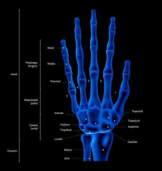 mri for carpal tunnel