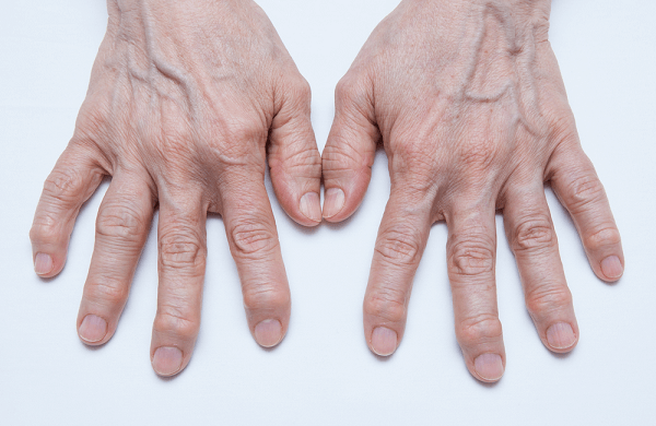 These are hands of a woman that is suffering from Osteoarthritis.