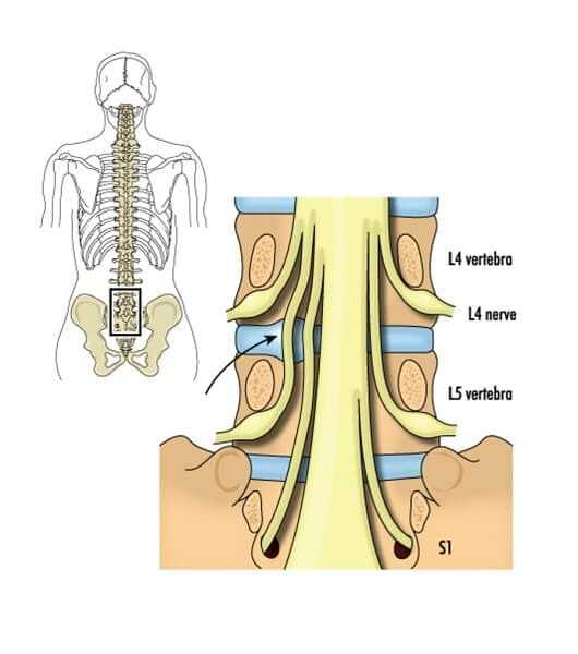lumbar and sacral nerves