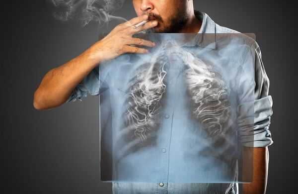 Crohns Disease and Smoking