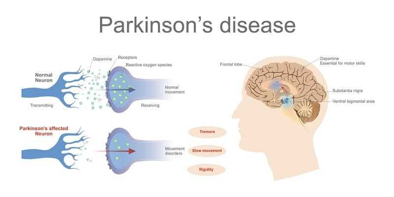 Dopamine levels in a normal and a Parkinson's Affected neuron