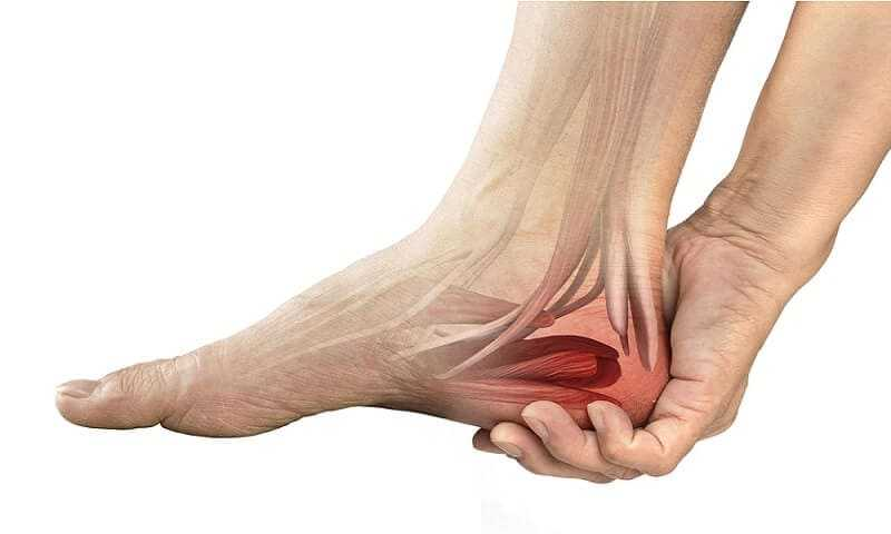Photo of Heel Pain and Heel Spurs