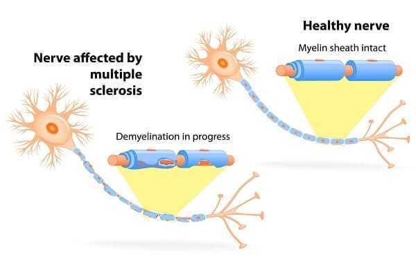 multiple sclerosis Nerve affected