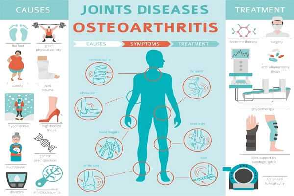 Overview of Osteoarthritis
