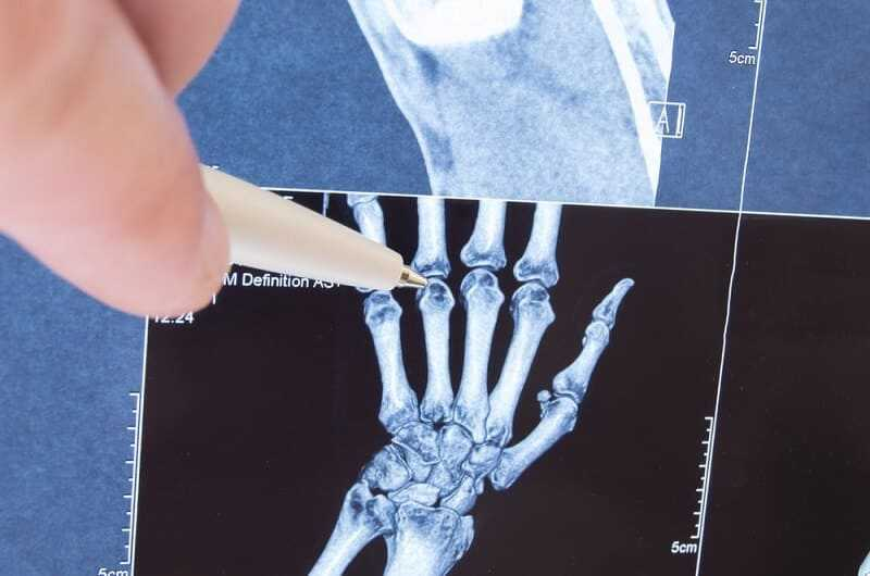 Pauciarticular juvenile rheumatoid arthritis