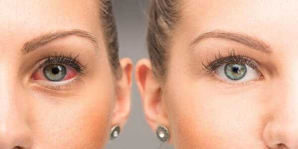 Red eye before and after the use of eye drop
