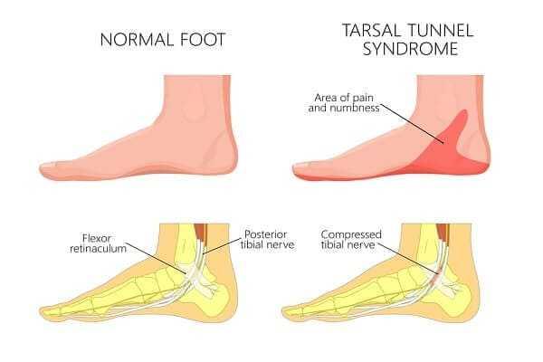 Tarsal Tunnel Syndrome