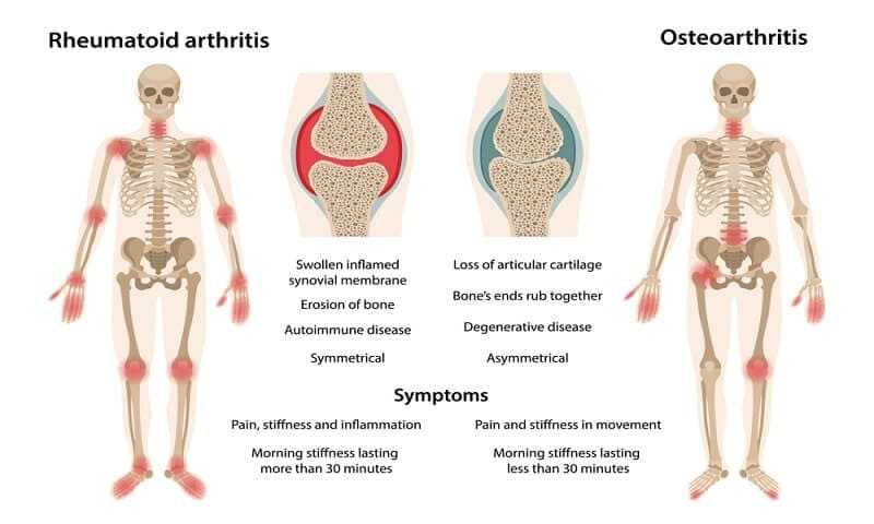 Photo of The Difference Between Arthritis and Rheumatism