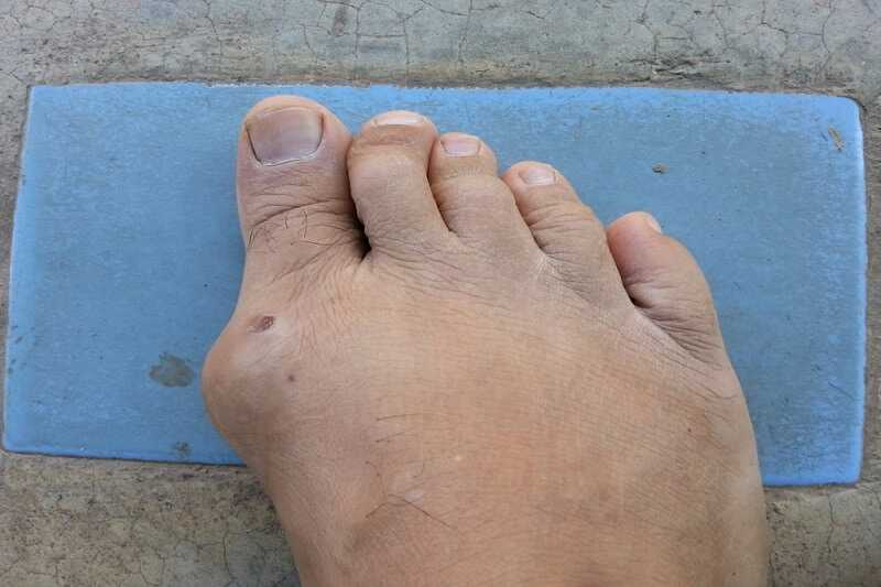 Photo of Gout