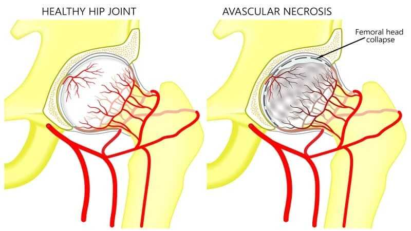 Vector illustration anatomy of a healthy human hip joint and a hip with avascular necrosis of the femoral head