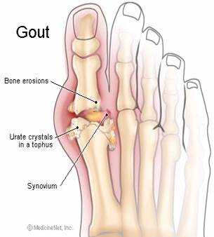anatomy of gout