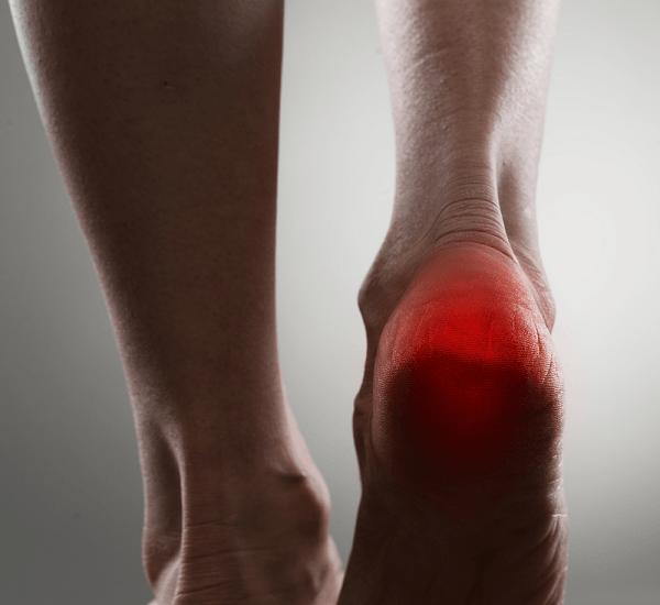Female heel pain