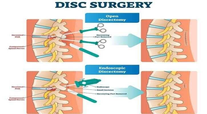 open and endoscopic spine surgery