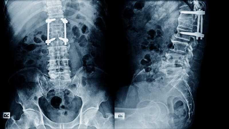 Photo of Degenerative Disc Disease Surgery