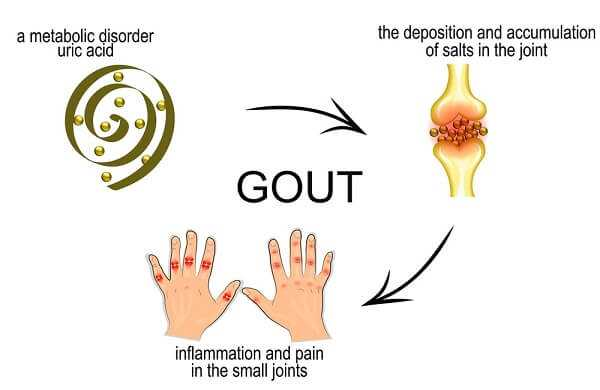 Gout leads to joint inflammation