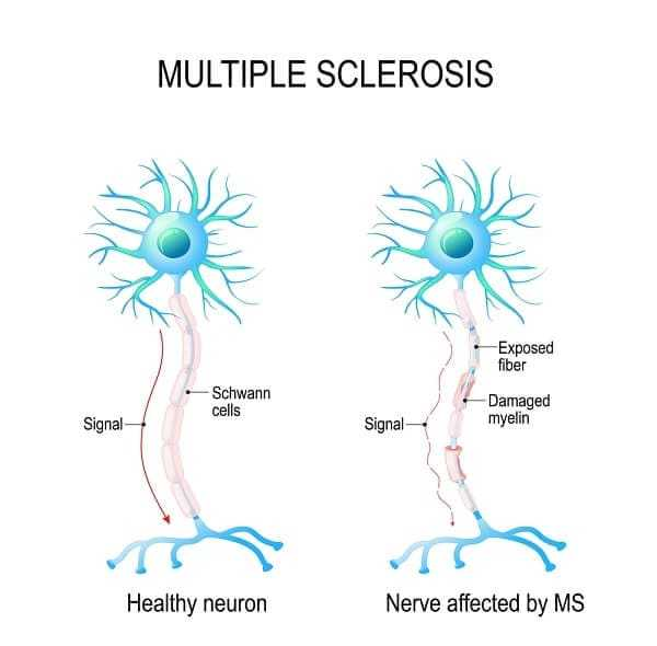 the nerves of the brain and spinal cord are damaged by ones own immune system