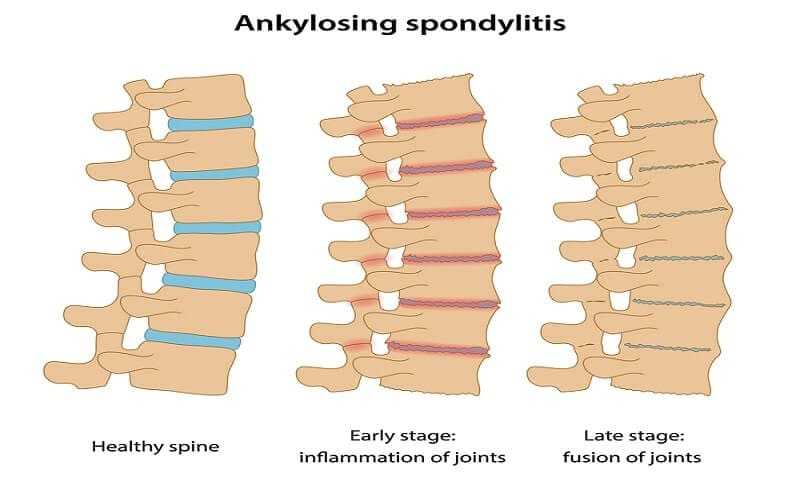 Ankylosing Spondylitis Warning Signs