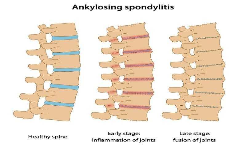 Ankylosing Spondylitis Warning Signs