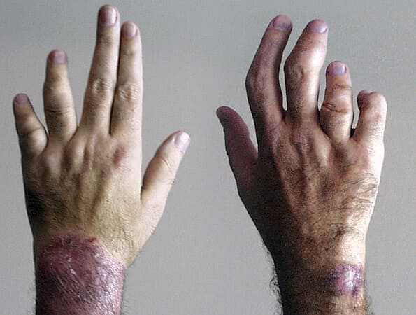 Asymmetric psoriatic arthritis