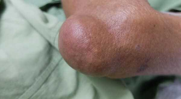 Bony Swelling at elbow secondary due to chronic gouty arthritis