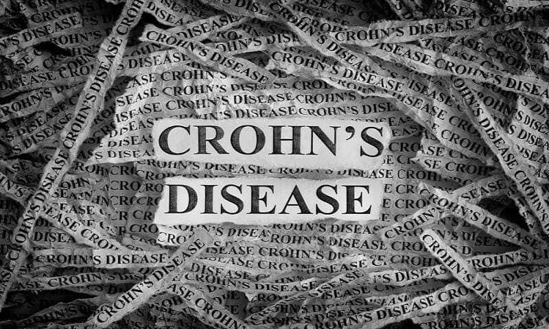 Crohns Risk Factors