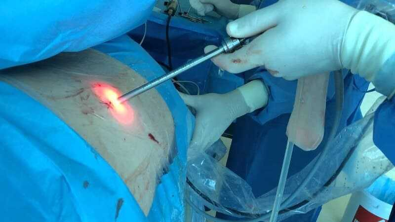 Photo of Endoscopic Spinal Surgery
