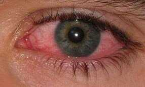 Eye Inflammation with crohns disease