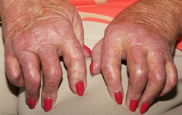 Inflammation leading to painful, swollen, hot, and red joints