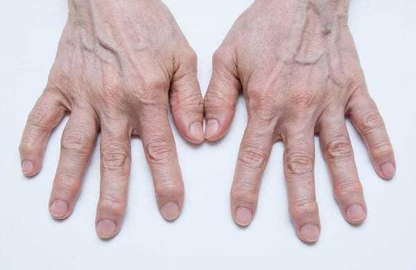 Osteoarthritis Hands