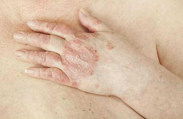 Psoriatic Arthritis on hand