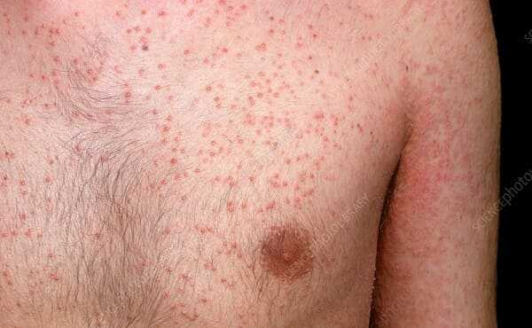 Skin in Reiters syndrome