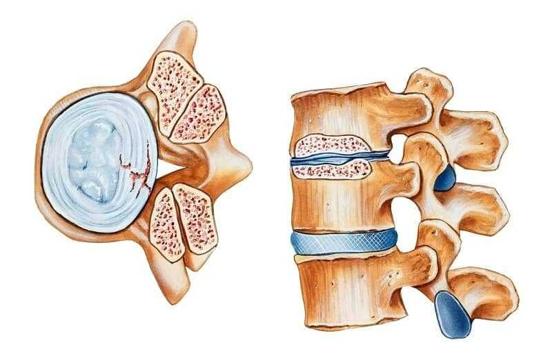 Spinal Stenosis What is it and What can you do about it