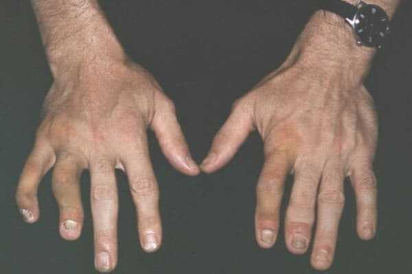Symmetric psoriatic arthritis